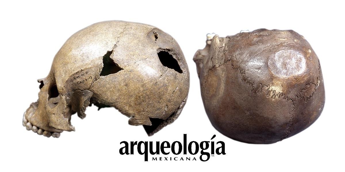 Trepanaciones y lesiones suprainianas | Arqueología Mexicana
