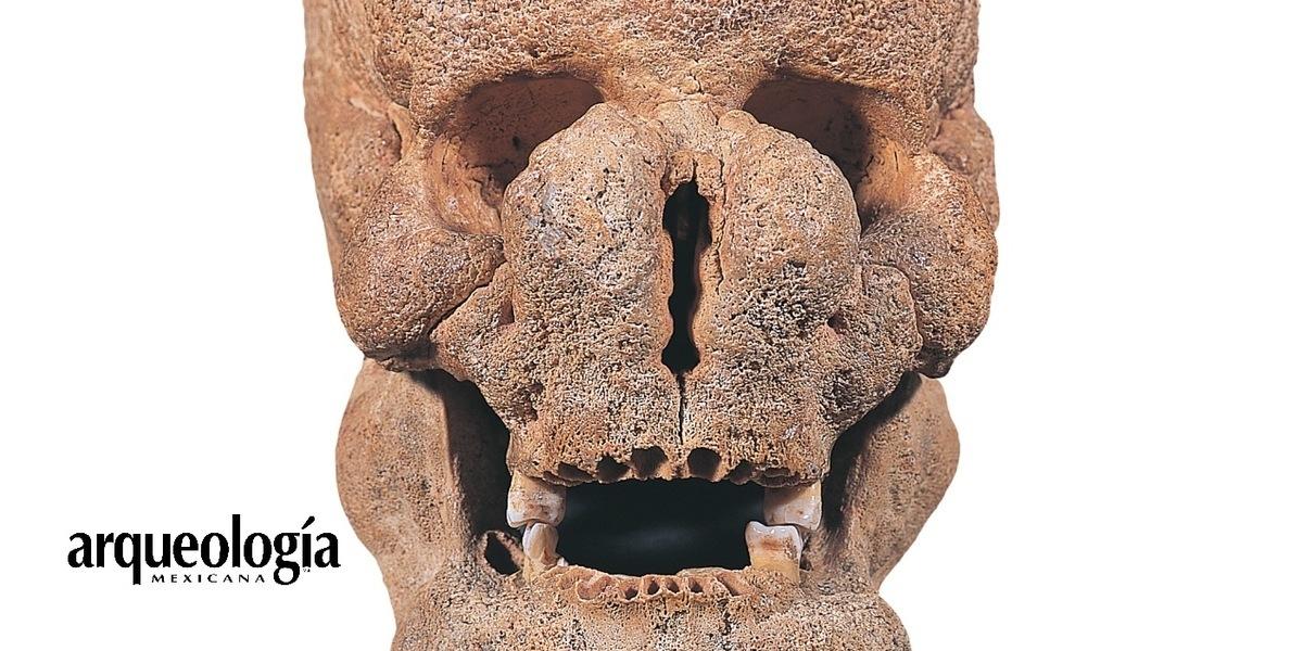 Las huellas de las enfermedades en los huesos