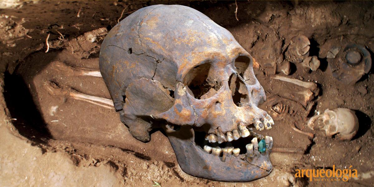 Una prótesis dental en Teotihuacan